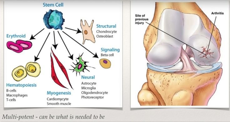 Conditions that are commonly treated but not limited to are: Acute or Chronic pain (heel pain or joint pain), foot or ankle sprains, tendon tears and or ruptures, it has also been successful in providing reduced pain, improved patient satisfaction, and quicker post-operative recovery allowing you to get you back on your feet.  #stemcell #stemcelltreatment