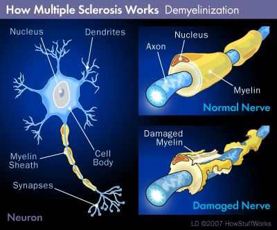 THE BODY ATTACKS ITSELF BY EATING AWAY AT THE MYELIN COATING OF THE NERVES. THIS DAMAGE IS IRREVERSIBLE. <3