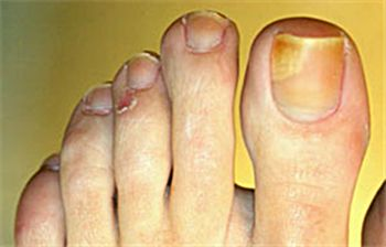 How to Get Rid of Fungus Under the Toenail  http://www.yellowtoenailscured.com/fungus-under-the-toenail/