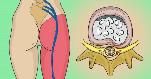 El dolor de la espalda en el vientre