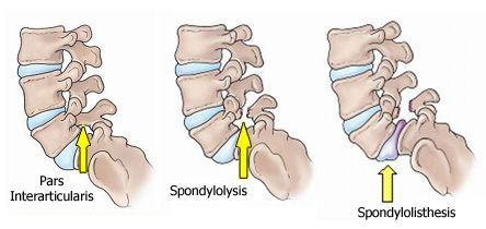 Back pains have been common complaints from adults falling in different age groups. The fierce competition in the market has led too much of stressful and long working hours before the computer monitor leading to back pains. Some of the common causes of the back pain include spondylolysis and spondylolisthesis. Though you have a number of non surgical solutions to these problems, however, if the back pain turns unbearable after trying all these options, then the doctor suggest for respective…