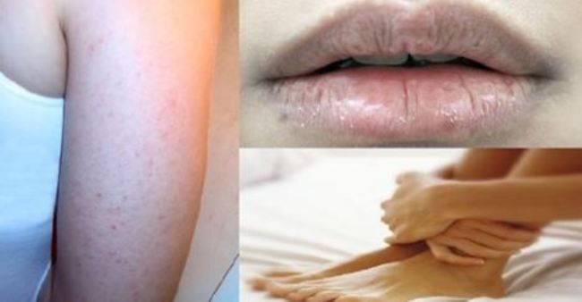 You Have Dry Skin? You Are Losing Your Hair? Find Out Which Vitamins You Are Missing