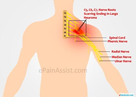 Pinched Nerve In Neck Natural Treatment