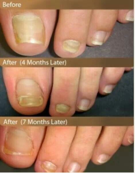 13 best Nail Treatment and care images on Pinterest | Home remedies ...