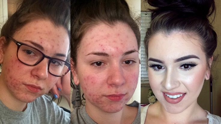UPDATED | Acne Coverage Foundation Routine