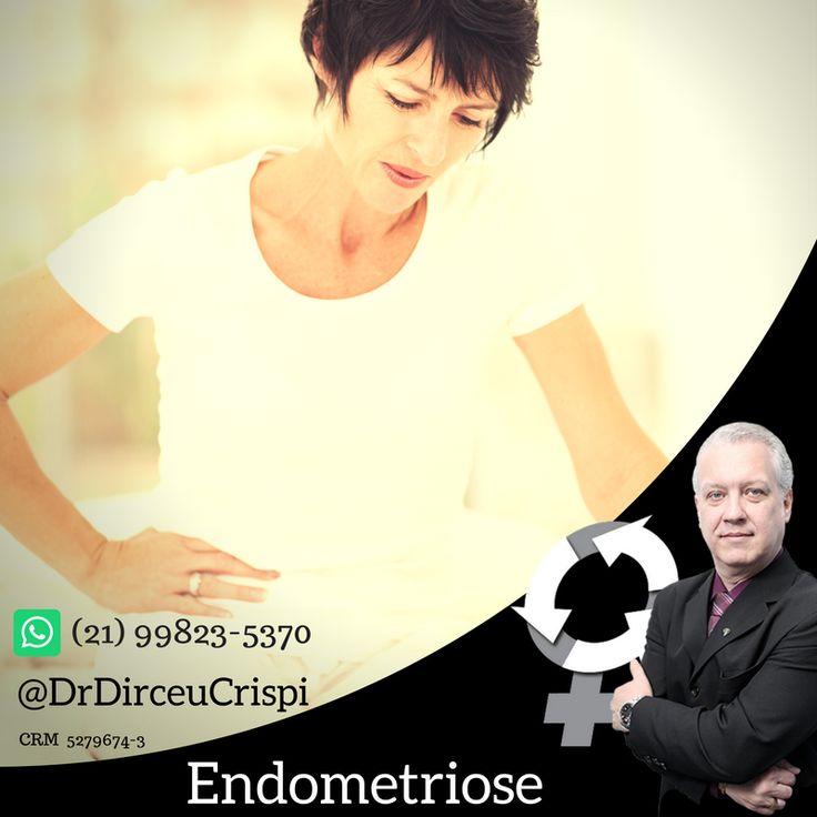 """Considera-se uma paciente portadora da síndrome de #DorPelvicaCronica, aquela que apresenta dor no andar inferior do abdome anterior (baixo ventre), abaixo da cicatriz umbilical, ou ainda, na parte das costas em região lombossacra (""""pé das costas"""").     CLIQUE e saiba mais👇  http://dirceucrispi.com.br/patologias/dor_pelvica_cronica    Essa dor tem uma duração maior que 6 meses, não tendo relação com o ciclo menstrual e leva a diversos graus de comprometimento das atividades diárias da…"""