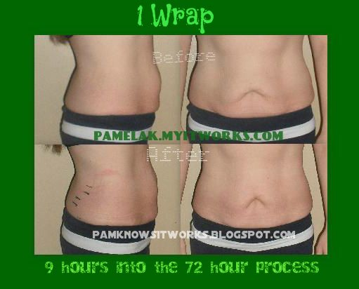 Wraps even work after weight loss.  Lots of extra skin from 2 children and 130 lbs lost.  Check out the tightening.  Ohhh by the way... this is me! :)