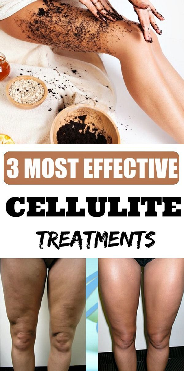 Most Effective Cellulite Treatments - Extra Beauty Tips