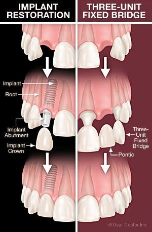 Do you need to replace a tooth or several teeth? Are you trying to decide between an implant to support a single crown or a fixed bridge? Ask your #dentist about your options! #implant #dental #fixedbridge blog.dmsmiles.com... http://blog.dmsmiles.comnew-biopatch-regenerate-bone-dental-implants-developed/?utm_content=bufferbbe39&utm_medium=social&utm_source=pinterest.com&utm_campaign=buffer