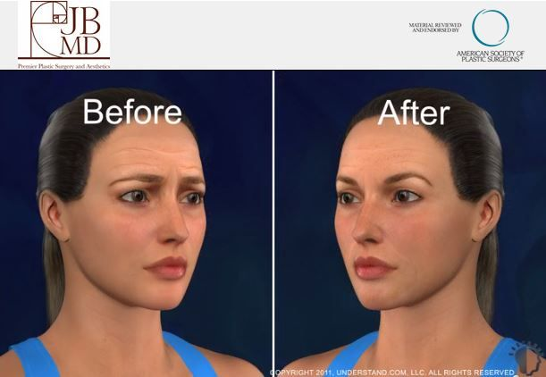Have you considered having a brow lift? This link will show you a step-by-step video overview about this amazing procedure: http://premierokc.com/procedures/facial-rejuvenation/forehead-lift-in-oklahoma-city/