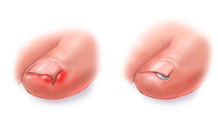 Zarůstání nehtů na nohou do pokožky je poměrně nepříjemná zdravotní komplikace. Zde je 5 domácích receptů, které vám s tím pomohou.