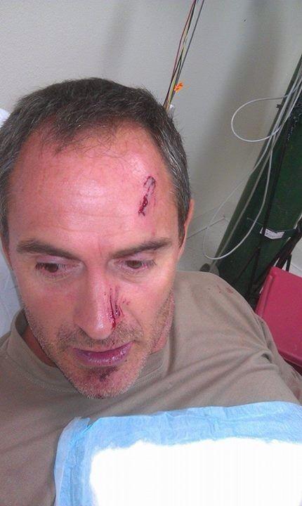 Franck after kissing a gar, in hindsight, not a good idea