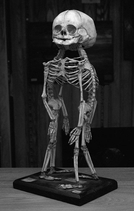 Conjoined twin skeleton. Thought inspiring.