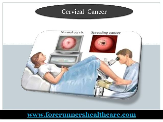 Cervical cancer causes (human papillomavirus infection), symptoms (abnormal vaginal discharge and pain), diagnosis, treatment...