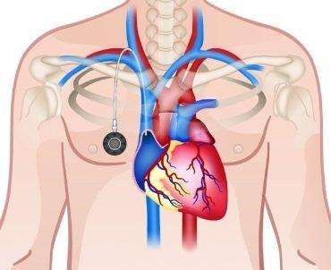 Τα port-a-cath είναι επικίνδυνα Mέσω του port-a-cath, χορηγείται χημειοθεραπεία, γίνονται μεταγγίσεις αίματος και δίνονται αντιβιοτικά και ενδοφλέβια...