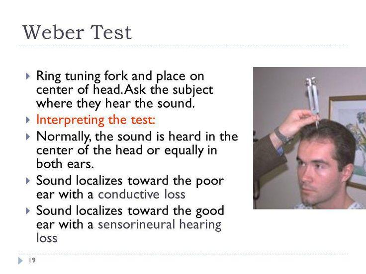 Image result for weber test