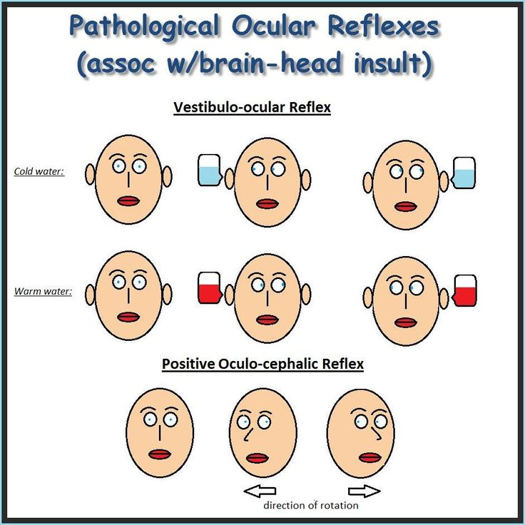 Pathological Ocular Reflexes The Second One Is Considered