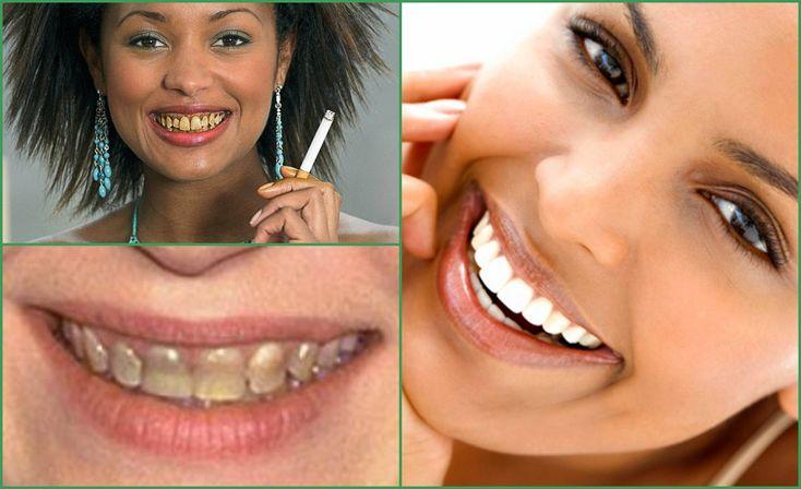 Существующие способы отбеливания зубов