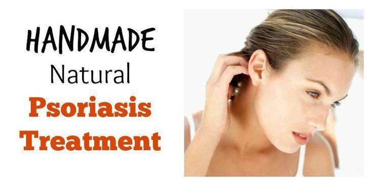 Handmade Natural Psoriasis Treatment