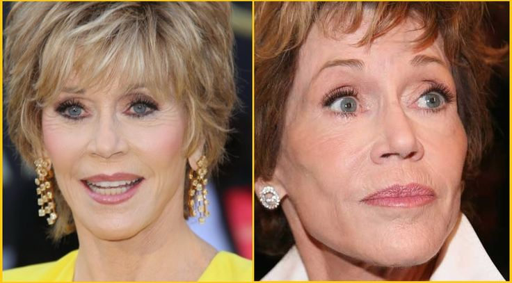 Jane Fonda Plastic Surgery Before and After Photo Showing Breast Implant and Facelift