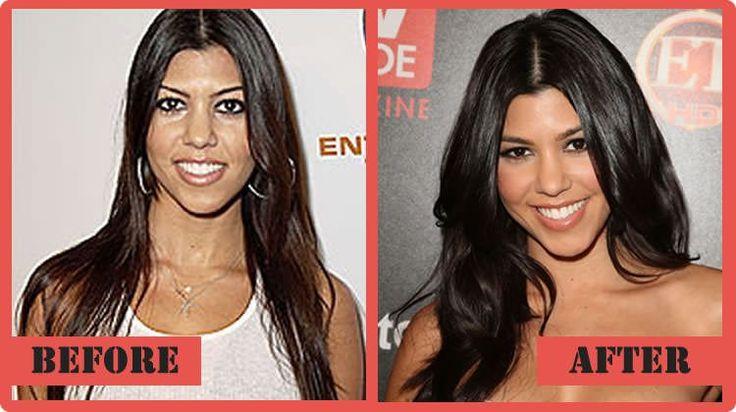 Kourtney Kardashian Plastic Surgery Quite Different From