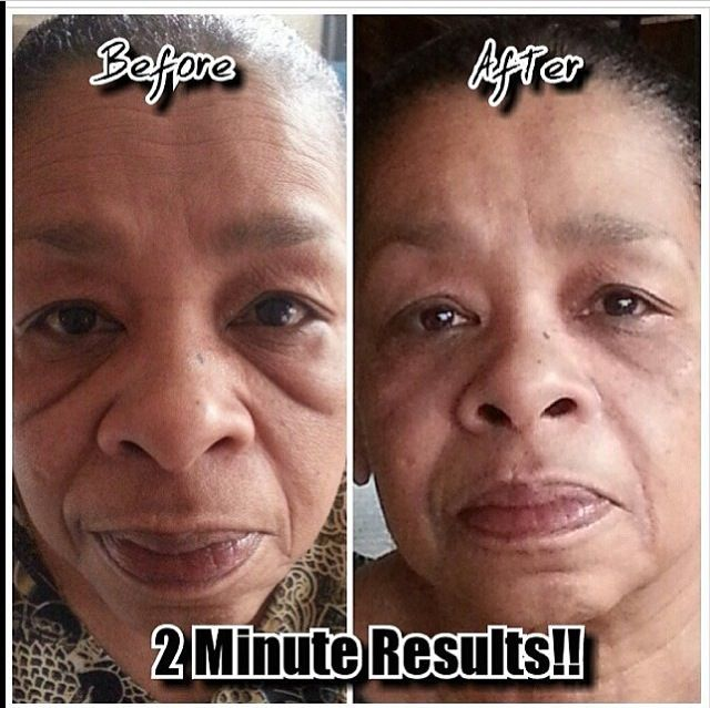 www.Pr3ttyVegan.com INSTANTLY AGELESS ▶️  Powerful anti-wrinkle microcream that works quickly and effectively to diminish the visible signs of aging. The revolutionary ingredient is argireline: a peptide that works like botox—without the needles. Instantly Ageless™ revives the skin and minimizes the appearance of fine lines and pores for a flawless finish. SIZE: 15 mL, 25 vials per box Purchase limit of 10 until further notice. Not yet available in Canada. Qty:   Total: $64.95