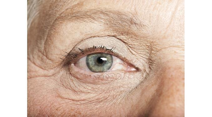 Anti-Aging Remedies for Eyes