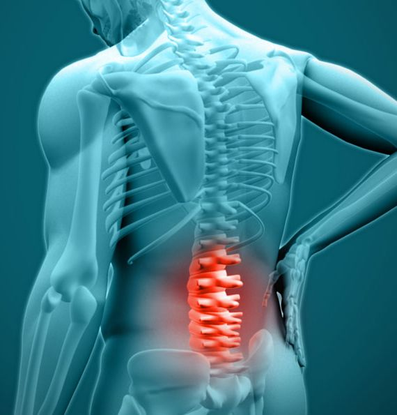 Can Ozone Therapy Help Relieve Back Pain? Ozone therapy works by reducing levels of prostaglandins—compounds in the body that trigger inflammation and pain
