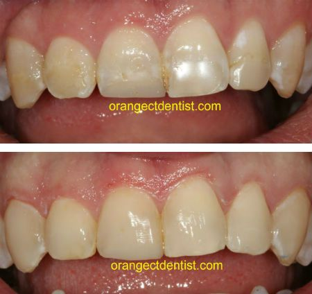 Conservative Teeth Bonding by Drs. Calcaterra in Orange, CT. Restore your smile in one visit. Repair chipped or a broken tooth. Close spaces and diastema.