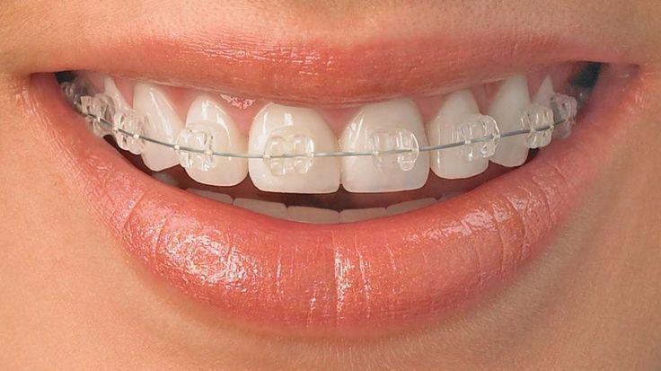 ¿Brackets a los 45 años? Cuándo, cómo y por qué.  En este enlace te explican de todas las dudas que tengas sobre los tratamientos de Ortodoncia para adultos.