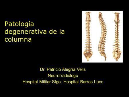 Patología degenerativa de la columna Dr. Patricio Alegría Velis Neurorradiólogo Hospital Militar Stgo- Hospital Barros Luco.