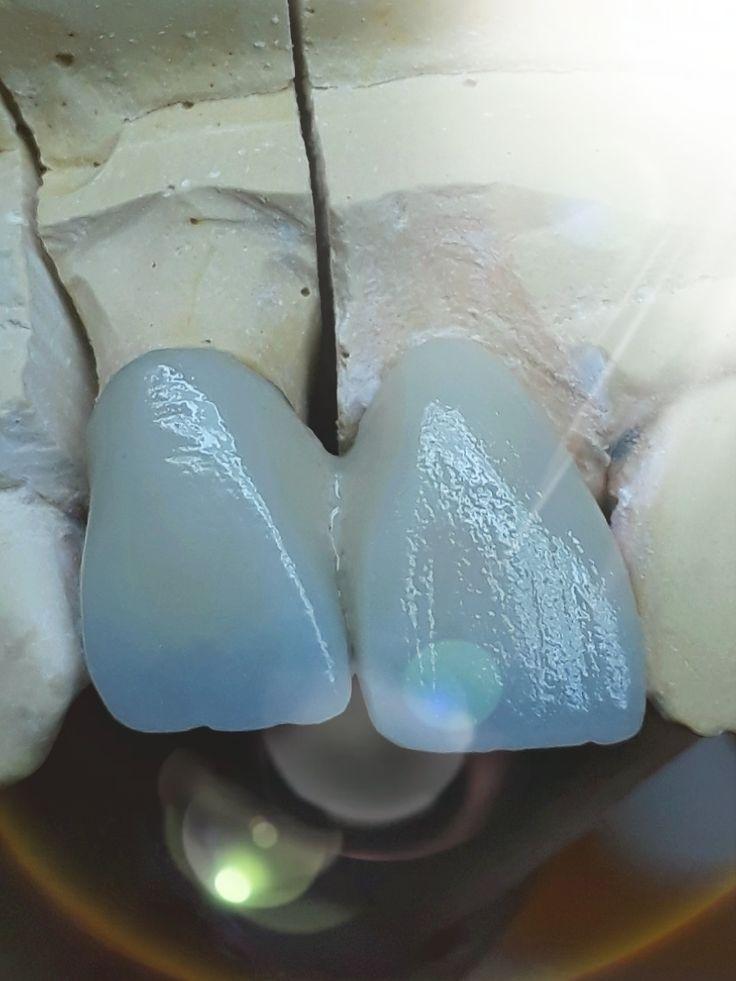 Cantilever bridge dental bridge cost dental bridge