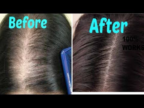 DIY Ginger Hair Mask for extreme hair growth | Promote Hair Growth  YouTube