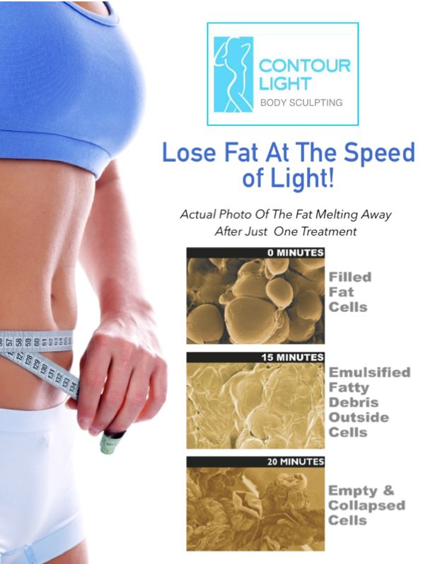 Tustin Family Chiropractic - Chiropractor In Tustin, CA USA :: Contour Light - Body Sculpting