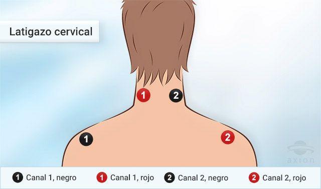 terapia para latigazo cervical