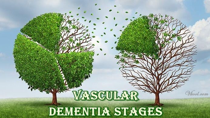 List of 7 vascular dementia stages is a brand new article revealing stages that an individual with vascular dementia can have to experience.
