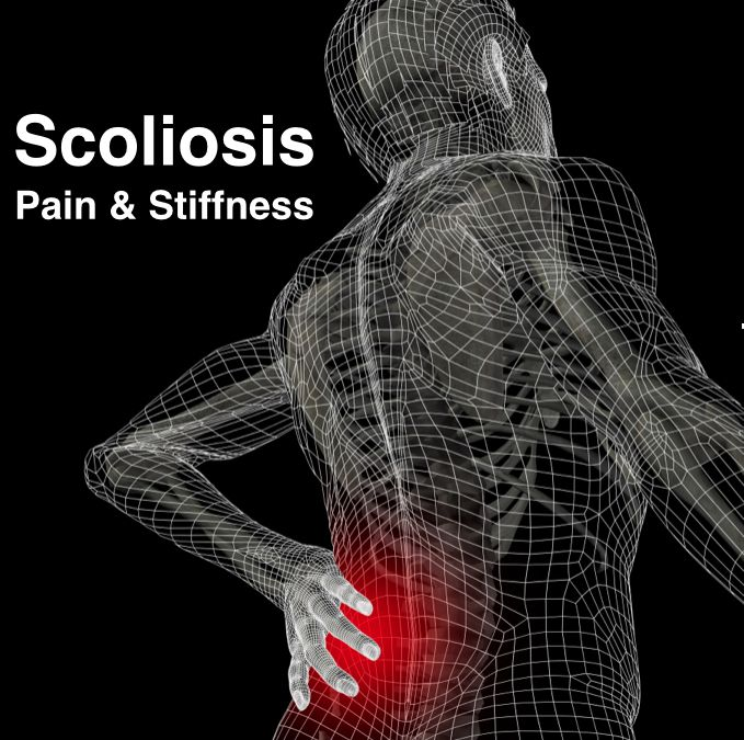 Active Release Technique for scoliosis is good for soft tissue adhesions from shortened tissues inside scoliosis curvatures, especially in adult scoliosis.