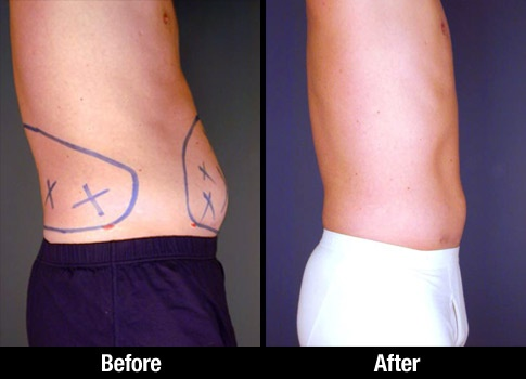 Male Liposuction Patient Before Amp After Picture Of