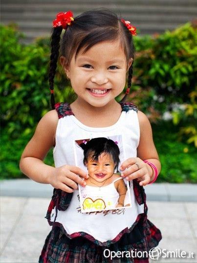 """""""Cam Ly viene dal #Vietnam, quando è nata aveva un buco nel labbro ed il palato completamente aperto. I suoi genitori erano molto spaventati. Si presero cura di lei teneramente, affrontando le sfide giornaliere. Provavano in tutti i modi ad essere ottimisti ma non erano in grado di aiutare la loro bambina"""".  Leggi la storia di Cam Ly"""