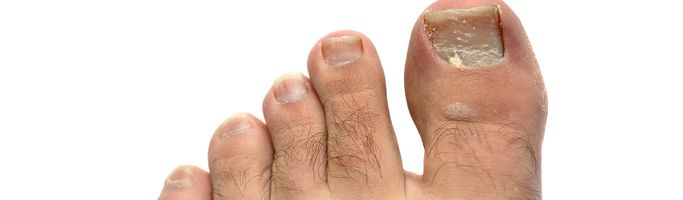 fungal nail infection treatment