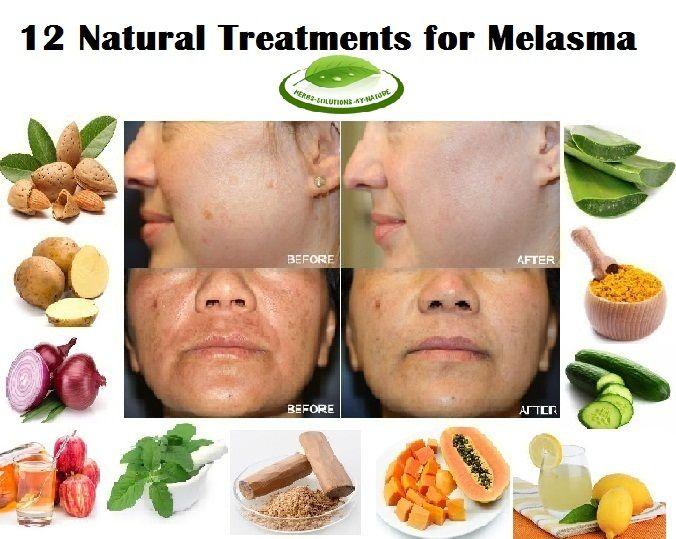 25 best ideas about melasma treatment on pinterest skin brightening hyperpigmentation. Black Bedroom Furniture Sets. Home Design Ideas