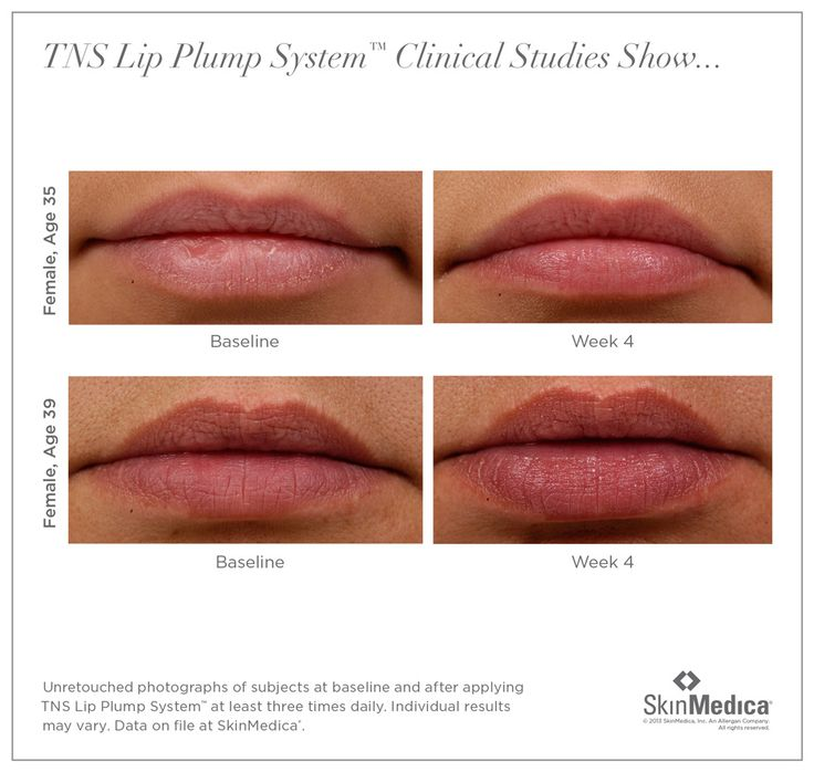 Skinmedica lip plump system before and after Skin medica