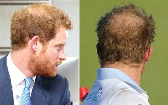 Prince Harry bald patch