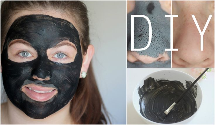 how to get rid of blackheads using toothpaste