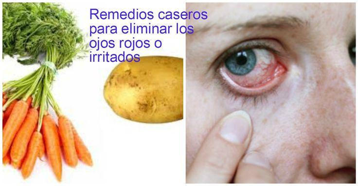 4 Remedios caseros eficaces para quitar los ojos rojos o irritados ~ Belleza y Peinados