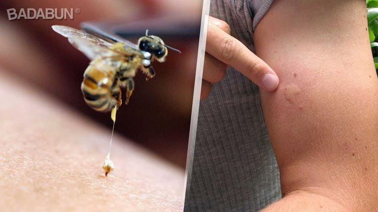 Mira que hacer en caso de una picadura de insecto