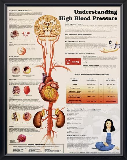 Understanding High Blood Pressure anatomy poster discuses types, causes, common symptoms and management of high blood pressure. Cardiovascular chart for doctors and nurses. #clinicalposters