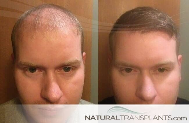 Cost Hair Transplant | Hair Transplant Before and After