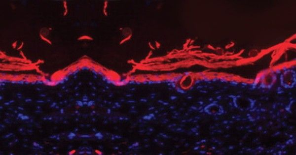 Doctors test new regenerative bandage for diabetic ulcers || Image Source: http://ic.pics.livejournal.com/akashmonpara01/77587250/1776/1776_600.jpg