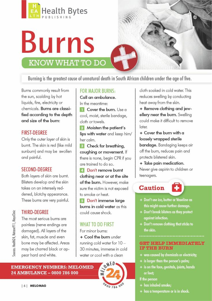First Aid Fact File Burns Emergency